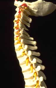 Arizona Spinal Cord Injury Lawyers